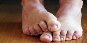 Ayaklarda sık görülen 4 cilt hastalığı!