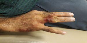 Elini iş makinesine kaptıran işçinin yüzüğü parmağına saplandı