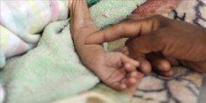 Gebze, Yemen'e sahip çıkıyor