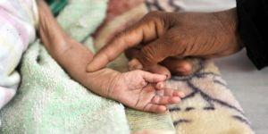 85 bin çocuk açlıktan öldü