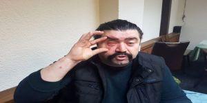 Asker Uğurlamasında Terör Estiren Şahıslar Tartıştıkları Adamın Gözünü Çıkardı