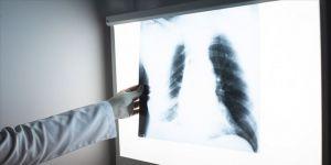Göğüs röntgeninden hastalık teşhisi yapay zekayla hızlanacak