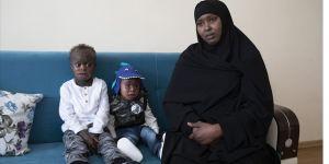 Somalili aile 'balık pulu' hastalığı nedeniyle ayrı düştü