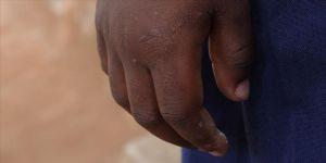Nijeryalı çocuğu satılmaktan yüzündeki kabile izleri kurtardı