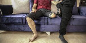 Yaralı girdiği cezaevinde bacağını kaybetti