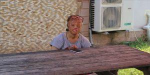 Leyla Demirci: Yüzüm yanık diye herkes benden kaçıyor