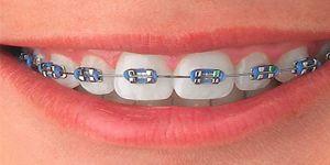 Diş Teli Temizliği