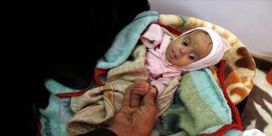 Yemen'deki vaatlerinizi yerine getirin