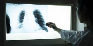 'Ölüm nedenlerinin yüzde 11'inden solunum hastalıkları sorumlu'