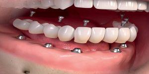 Uygun Fiyatlarla İmplant Çözümleri Diş Eksikliklerine Çözüm Sunuyor