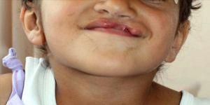 Gebelikte ilaç kullanımında 'dudak ve damak yarığı' riski