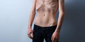 Anoreksiya Gençler Arasında Artış Gösteriyor