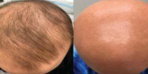 Kemoterapide Saç Dökülmesi