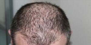 Kovid-19 sonrasında saç dökülmelerinde artış