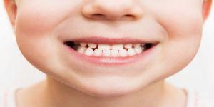 Çocuk Diş Doktoruyla İlk Muayene Nasıl Geçer?