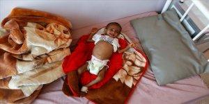 Yemen'de akut yetersiz beslenme sorunu çocukların hayatını karartıyor