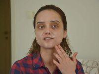 Güzellik merkezine giden kızın yüzü yandı