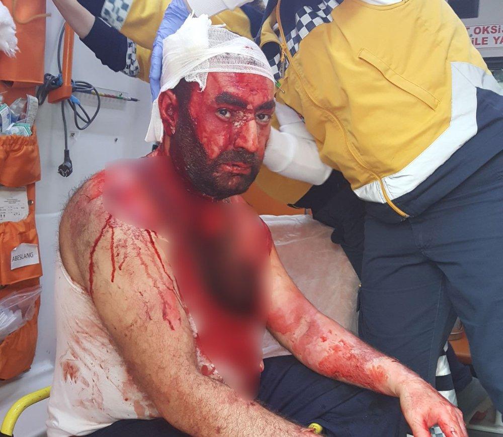 Kızgın Yağ Döktü, Başına Satırla Vurdu, 15 Yerinden Bıçakladı