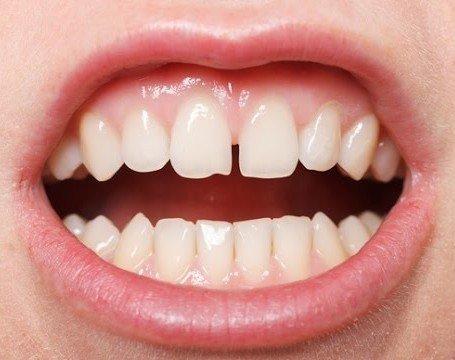 Zirkonyum ile ayrık dişlerinizden kurtulun