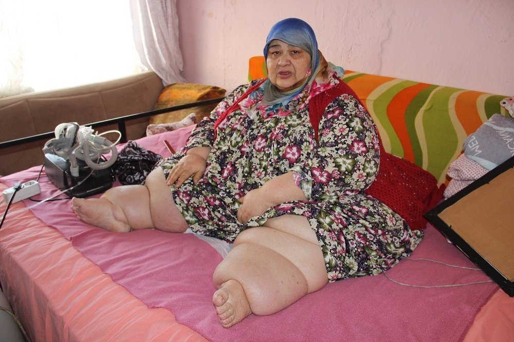 260 kilo ve yatağa mahkum